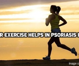Regular exercise helps in Psoriasis healing