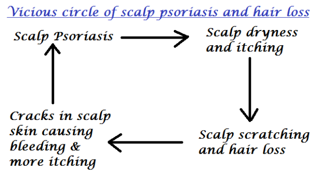 scalp psoriasis and hair loss diagram