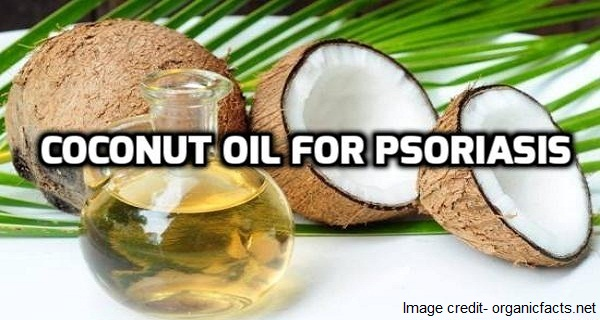 coconut oil for psoriasis