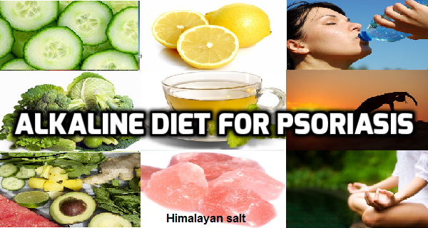 Alkaline diet for psoriasis psoriasis self management forumfinder Gallery