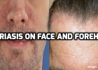 how to manage psoriasis on face and forehead