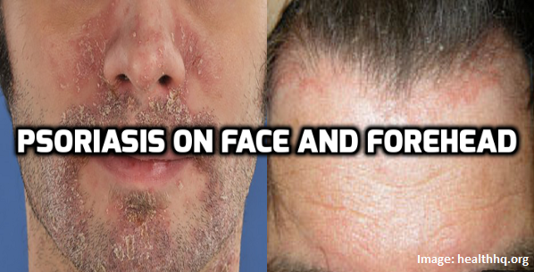 In simpler terms, salicylic acid burns the psoriasis flakes off the scalp 1