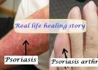 Psoriasis and Psoriasis arthritis1