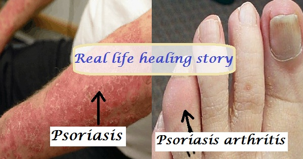 More Posts About My Journey To Heal Psoriasis 2