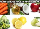 Psoriasis diet - It works