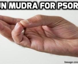 varun mudra for psoriasis