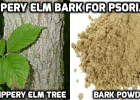 Slippery elm bark tea for psoriasis