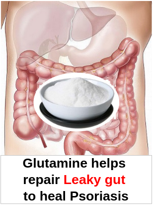 Leaky gut Psoriasis Glutamine