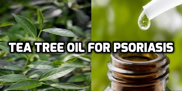 Tea tree oil: It's sometimes added to shampoos and may help scalp psoriasis 1
