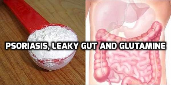 Glutamine helps repair leaky gut to heal psoriasis
