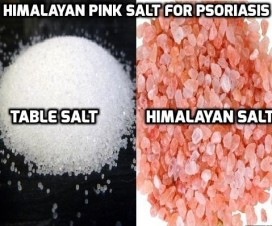 Himalayan Pink Salt for Psoriasis