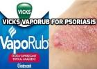 Vicks VapoRub for Psoriasis