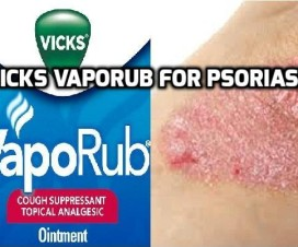 Vicks VapoRub for Psoriasis
