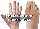 Psoriasis arthritis elimination diet