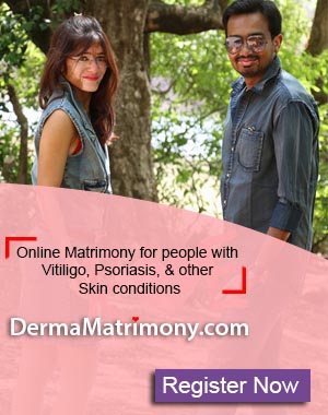 Vitiligo leucoderma white spots Psoriasis marriage matrimony